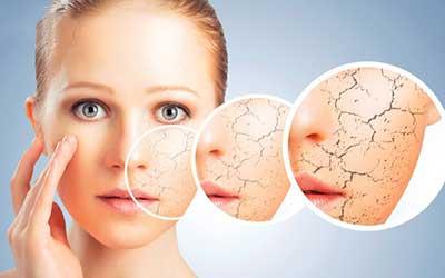 هیدرودرم و آبرسان پوست صورت