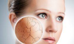 سلامت پوستتان در فصل سرما با این راهکارها